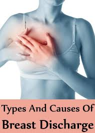 5 types and causes of breast discharge lady care health