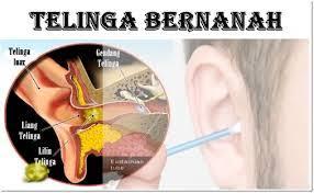 Obat Tetes Telinga Dan Harganya obat tetes telinga bernanah