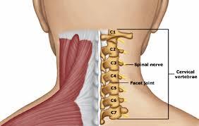 Cervical Strain