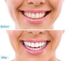 teeth whitening riverdale ny dentist dr taller dental family