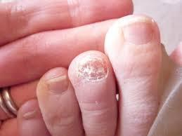 unique toenail fungus should i remove the nail for nail design