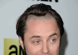 hairstyles for men with a high hairline unique male hairstyle receding hairline hairstyle receding