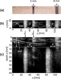 study of clutter origin in in vivo epi optoacoustic imaging of