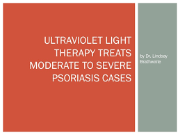 psoriasis and ultraviolet light ultraviolet light therapy treats moderate to severe psoriasis