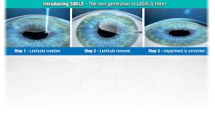 home design center fern loop shreveport la wk eye institute top eye doctors top ophthalmologists top