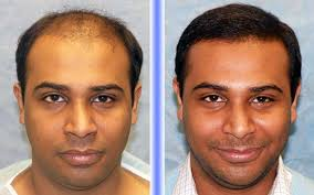 hair plugs for men best men fut dht and dhi hair transplant centre in hyderabad and