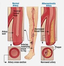 Foot Vascular Anatomy Peripheral Arterial Disease Care Triangle Vascular Associates
