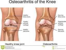 what is the alternative to knee replacement quora
