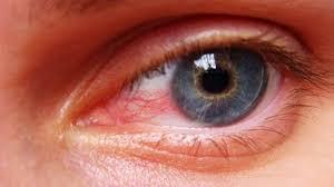 eye pain from light eye redness and pain and light sensitivity www lightneasy net