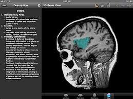 Sagittal Brain Mri Anatomy Brain Tutor Hd App Allows For Anatomy Learning By Combining 3d And
