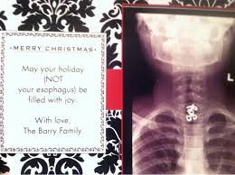 my friend u0027s daughter swallowed a holiday pin last year u0026 had to go