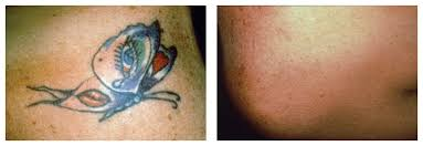 laser tattoo removal before u0026 after pictures monarch med spa