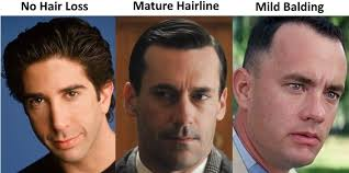 percentae of men with thinning hair at 60 the mature hairline explained are you balding or maturing