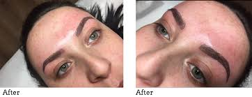semi permanent makeup cosmetic tattooing at pall mall medical