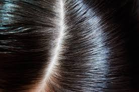 Will Lice Treatment Ruin Hair Color Hair Sos How To Best Care For Coloured Hair Liz Earle Wellbeing