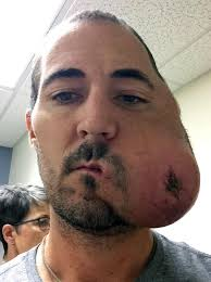 man left with half a face after aggressive cancer ravaged his