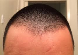 is this diffuse thinning problems with thyroid hairlosstalk