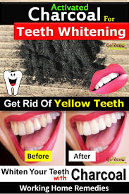 Does Laser Teeth Whitening Work Best 20 Charcoal For Teeth Whitening Ideas On Pinterest