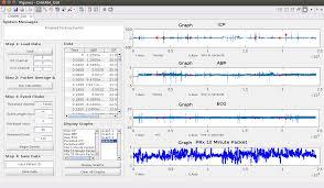 guide matlab cerebral haemodynamic autoregulatory information system gui