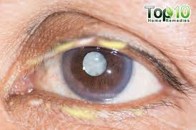 things your eye gunk says about health top 10 home remedies