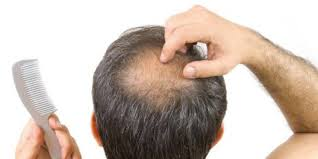 how to stop hair loss and regrow hair youtube