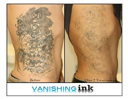 dynamic tattoo removal houston tx laser tattoo removal vs