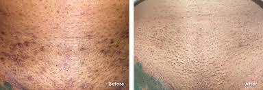 brazilian laser hair removal pictures laser hair removal blue divine aesthetics spa atlanta ga