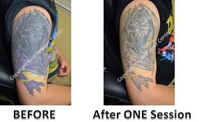 easiest and hardest tattoo colors laser tattoo removal