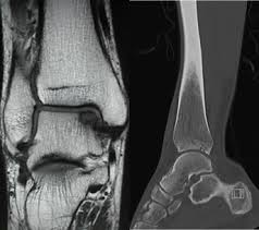 Ankle Ligament Tear Mri Ankle Ligament Repair Surgery Private Surgeon London London