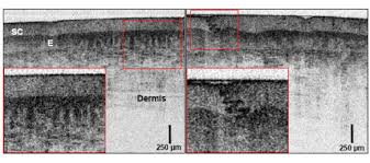 osa optical coherence tomography using a continuous wave high