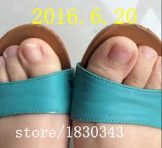 aliexpress com buy toe nail fungus gray nail special traditional