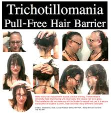 hair styles for trichotellamania trichotillomania before and after pictures
