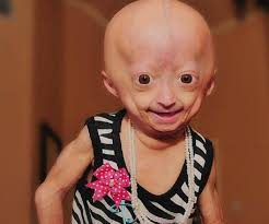 Adalia Rose Memes - adalia rose bio facts family life of social media star