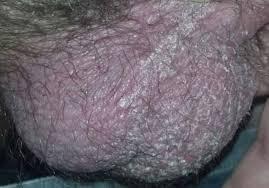 yellow puss filled ingrown hair ingrown hair on scrotum testicle sack pictures symptoms cyst
