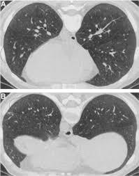 high resolution ct scan findings in patients with symptomatic