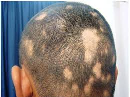 Reasons For Sudden Hair Loss Hair Loss On One Side Of Head 4 Causes U0026 3 Natural Treatments