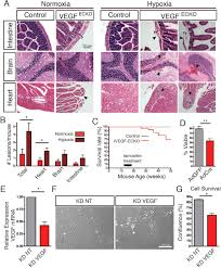autocrine vegf maintains endothelial survival through regulation