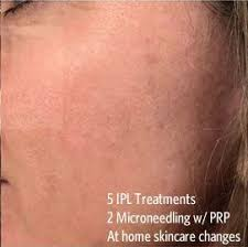 light treatment for skin intense pulsed light treatment dc skin care professionals