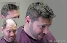 natural hair cuts dallas tx hair restoration hair loss treatment medical wigs dallas tx texas