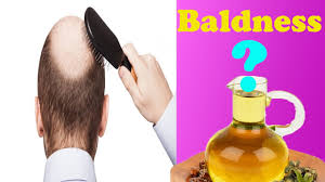 Natural Hair Growth Remedies For Black Hair Natural Hair Loss Treatment Cure Baldness How To Treat Baldness