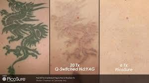laser tattoo removal melbourne u2013 lazer wizard