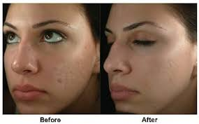 light therapy for acne scars acne acne scar treatments body beautiful spa and med spa