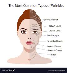 types of hair lines common types of facial wrinkles cosmetic surgery vector image