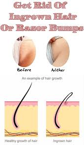 how to remove engrown hair onunderwear line get rid of ingrown hair or razor bumps ideal beauty guide