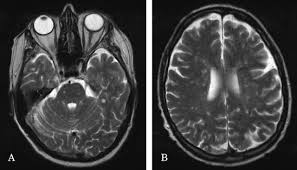 Brainstem Mass Encephalopathy In A Patient With Previous Malignancy But Normal