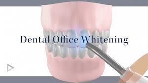 zoom teeth whitening dentist in boston ma