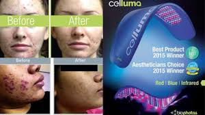 blue light for acne side effects celluma light therapy glow med spa