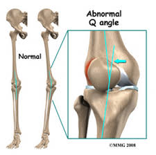 Knee Bony Anatomy Chondromalacia Patellae Physiopedia