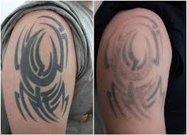 tribal tattoo removal danielhuscroft com