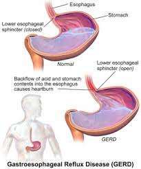 Esophagus And Stomach Anatomy Gastroesophageal Reflux Disease The Patient Guide To Heart Lung